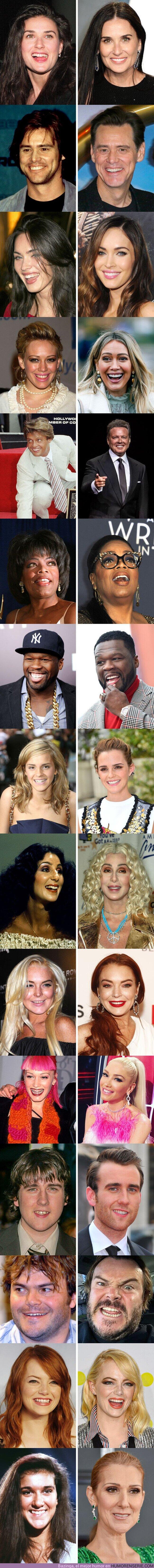 68505 - GALERÍA: Mira cómo cambió la sonrisa de estos 15 famosos luego de que arreglaron sus dientes (nueva edición)