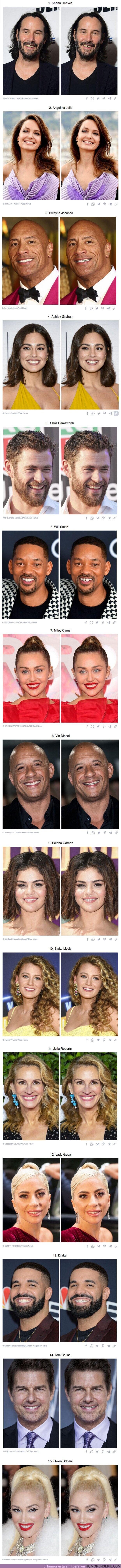 77570 - GALERÍA: 15 Fotos que demuestran cómo los dientes pueden cambiar el rostro