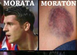 Enlace a Morata con moratón