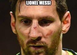 Enlace a Ahora Messi ya conoce a Smalling