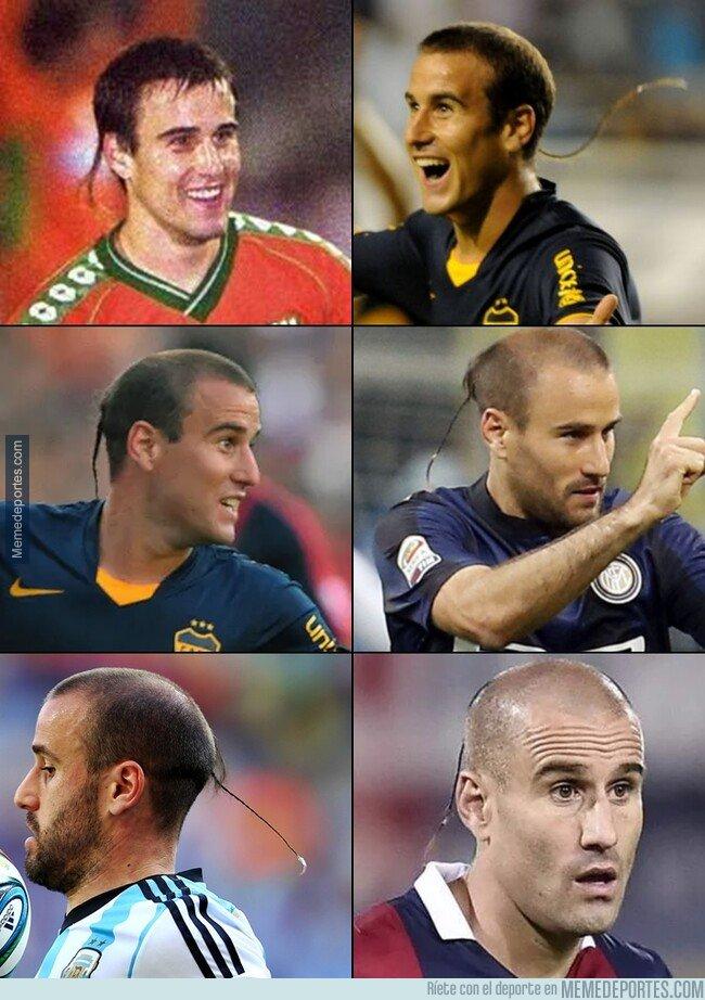 1092001 - La trenza de Palacio que venció incluso el progreso de la alopecia.