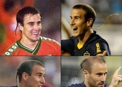 Enlace a La trenza de Palacio que venció incluso el progreso de la alopecia.