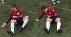 Enlace a MUY FUERTE: Una jugadora se disloca la rodilla en pleno partido y se la coloca a puñetazos