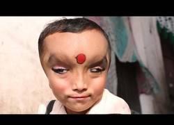 Enlace a Niño con una rara condición es considerado un Dios en India (ingles)