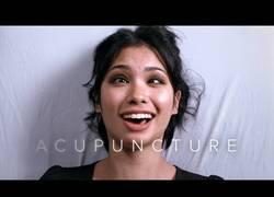 Enlace a Las sensaciones de estas personas al hacerse acupuntura por primera vez