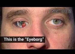 Enlace a Presentan el 'eyeborg', una cámara de última tecnología conectada a su ojo protésico