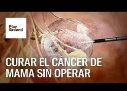 Enlace a Gran paso contra el cáncer de mama sin operar