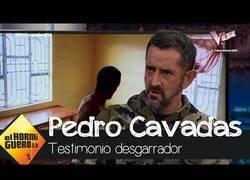Enlace a Entrevistan en El Hormiguero a Pedro Cavadas, el cirujano más solidario del mundo
