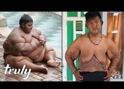 Enlace a Este niño ha protagonizado la mayor pérdida de peso del mundo