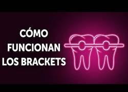 Enlace a ¿Cómo funcionan exactamente los brackets?