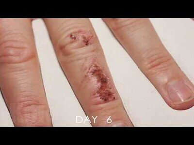 Así se curaría una herida si en lugar de un mes tardara 10 segundos