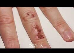 Enlace a Así se curaría una herida si en lugar de un mes tardara 10 segundos