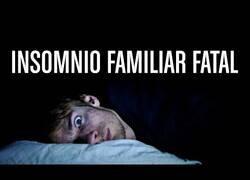 Enlace a La peor enfermedad del mundo: el insomnio familiar fatal