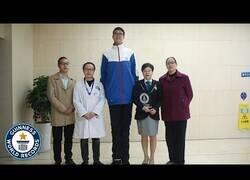 Enlace a El adolescente más alto del mundo
