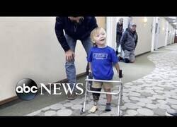 Enlace a Un medallista paralímpico anima a un niño a dar sus primeros pasos con protesis