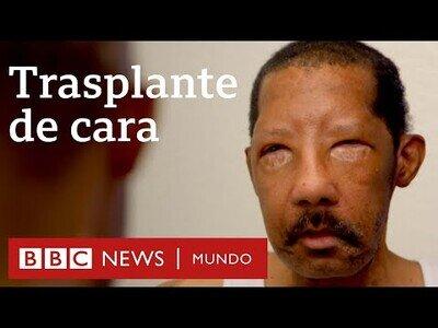 Así es la vida tras un transplante de cara