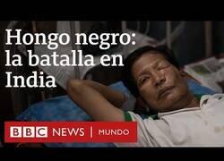Enlace a Hongo Negro: La epidemia dentro de la pandemia que sufren en India