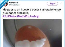 Enlace a Seeeeguro dental, huevo necesita un aparato, por @MortaSiciliana