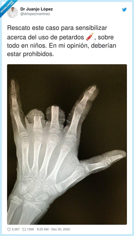 dedos,opinión,petardos,prohibido,radiografia,sensibilizar